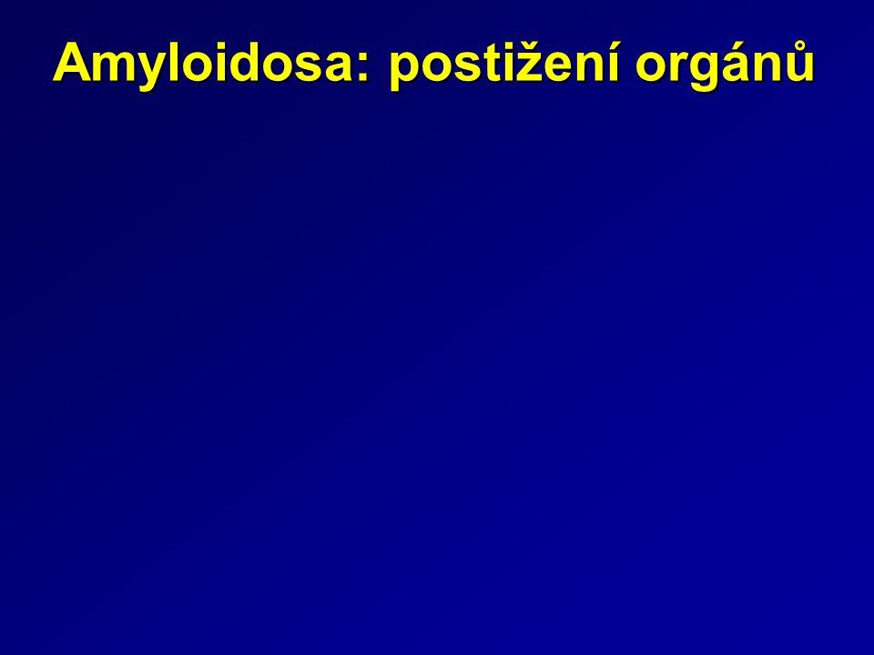 Amyloidosa: postižení orgánů