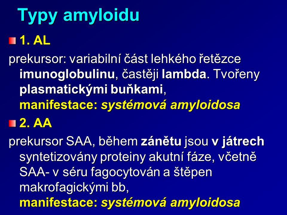 Typy amyloidu 1. AL.