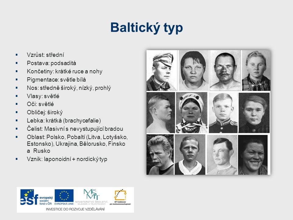 Baltický typ Vzrůst: střední Postava: podsaditá