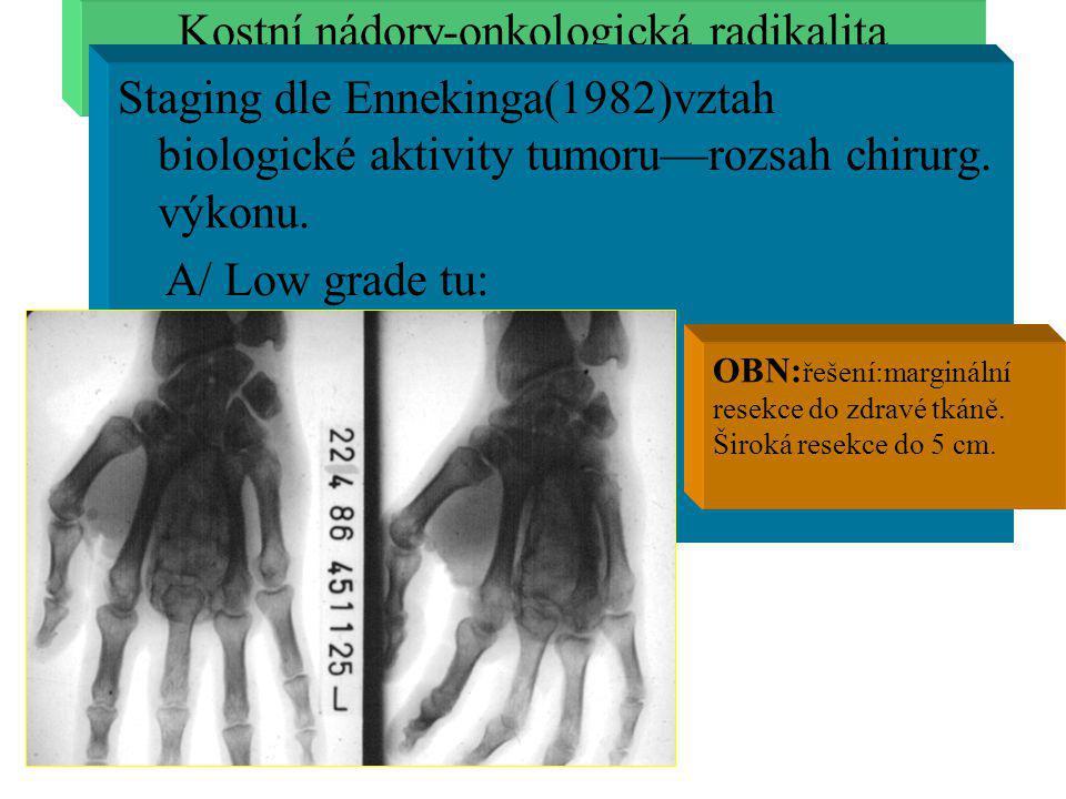Kostní nádory-onkologická radikalita
