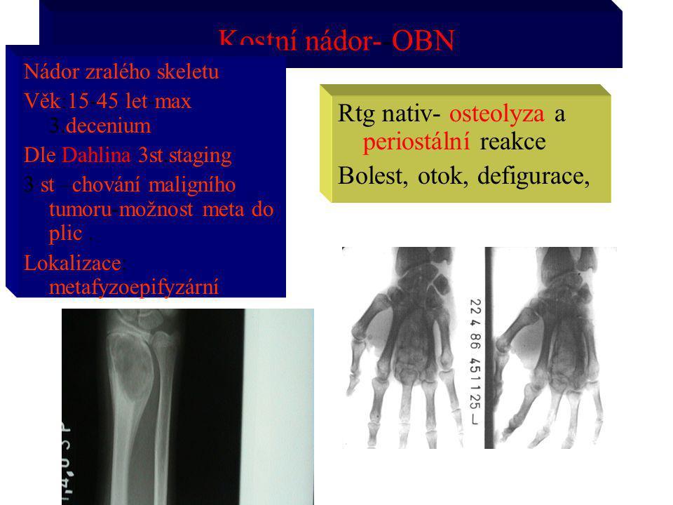 Kostní nádor--OBN Rtg nativ- osteolyza a periostální reakce