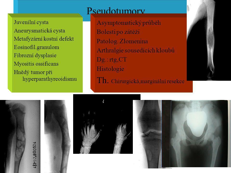 Pseudotumory Th. Chirurgická,marginální resekce Asymptomatický průběh