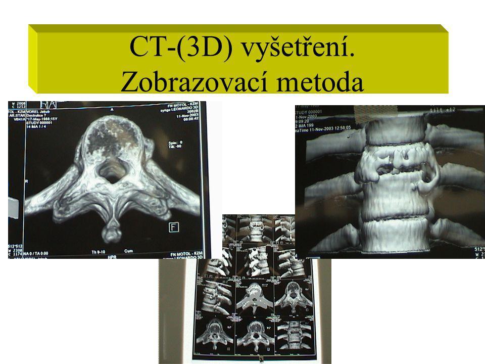 CT-(3D) vyšetření. Zobrazovací metoda