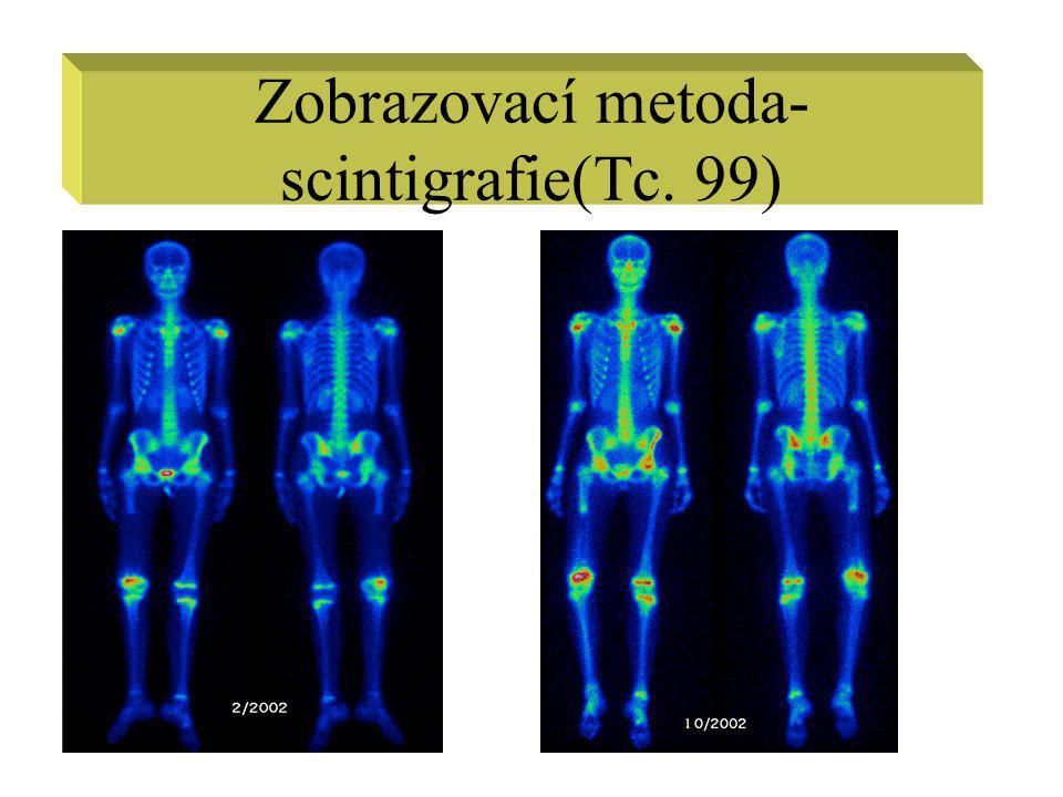 Zobrazovací metoda- scintigrafie(Tc. 99)