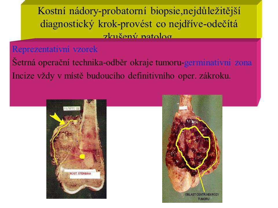 Kostní nádory-probatorní biopsie,nejdůležitější diagnostický krok-provést co nejdříve-odečítá zkušený patolog.