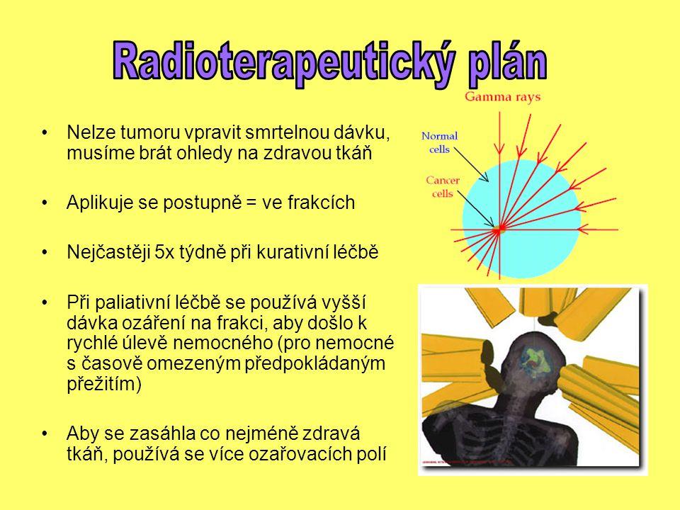 Radioterapeutický plán