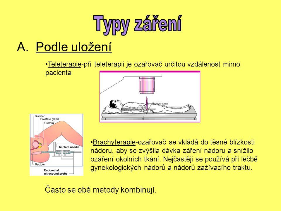 Typy záření Podle uložení Často se obě metody kombinují.
