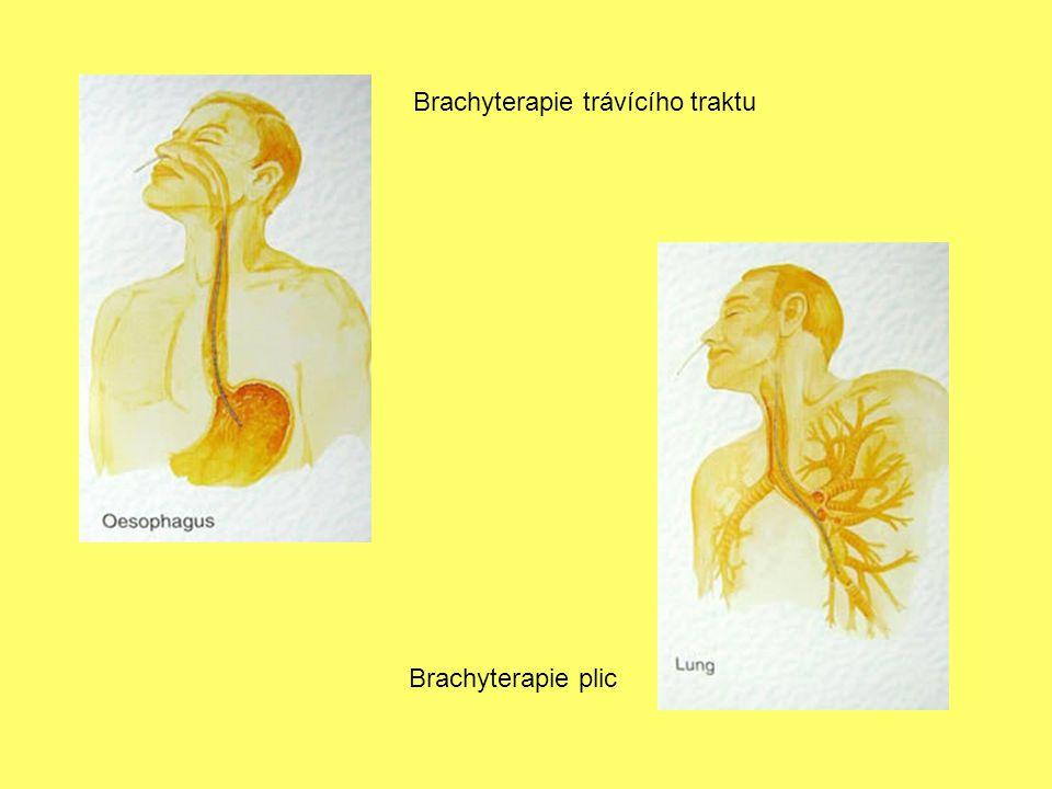 Brachyterapie trávícího traktu