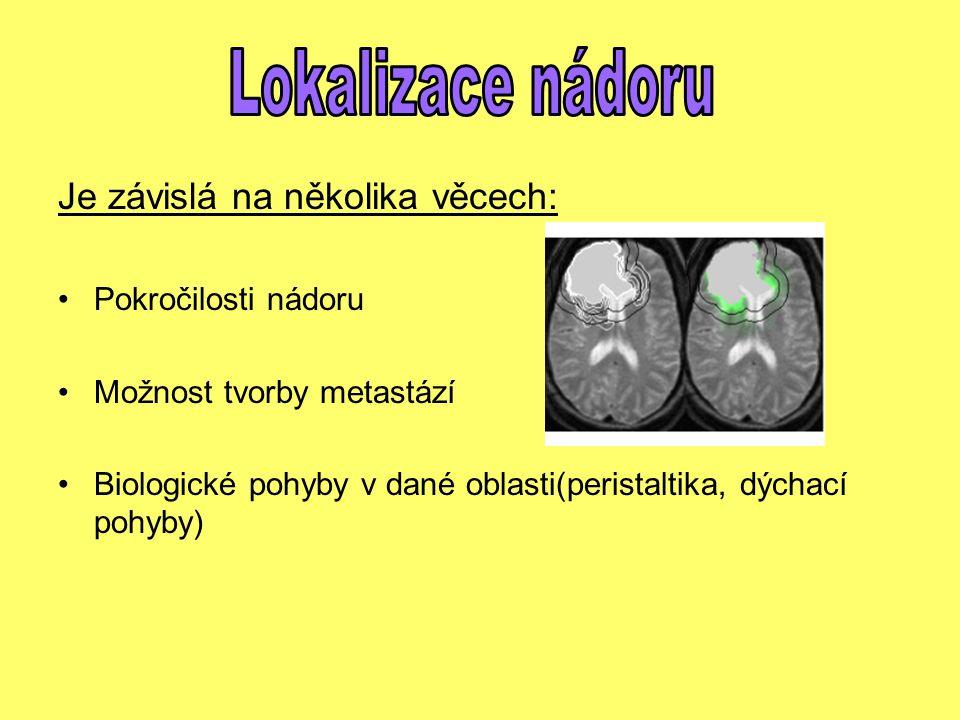 Lokalizace nádoru Je závislá na několika věcech: Pokročilosti nádoru
