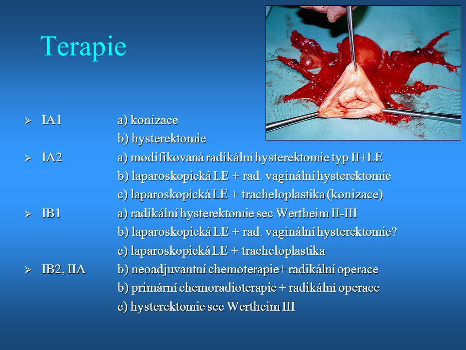 Terapie IA1 a) konizace b) hysterektomie