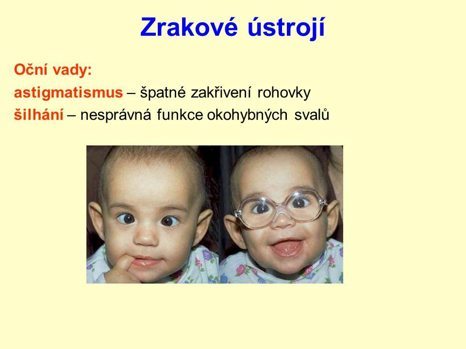 Zrakové ústrojí Oční vady: astigmatismus – špatné zakřivení rohovky
