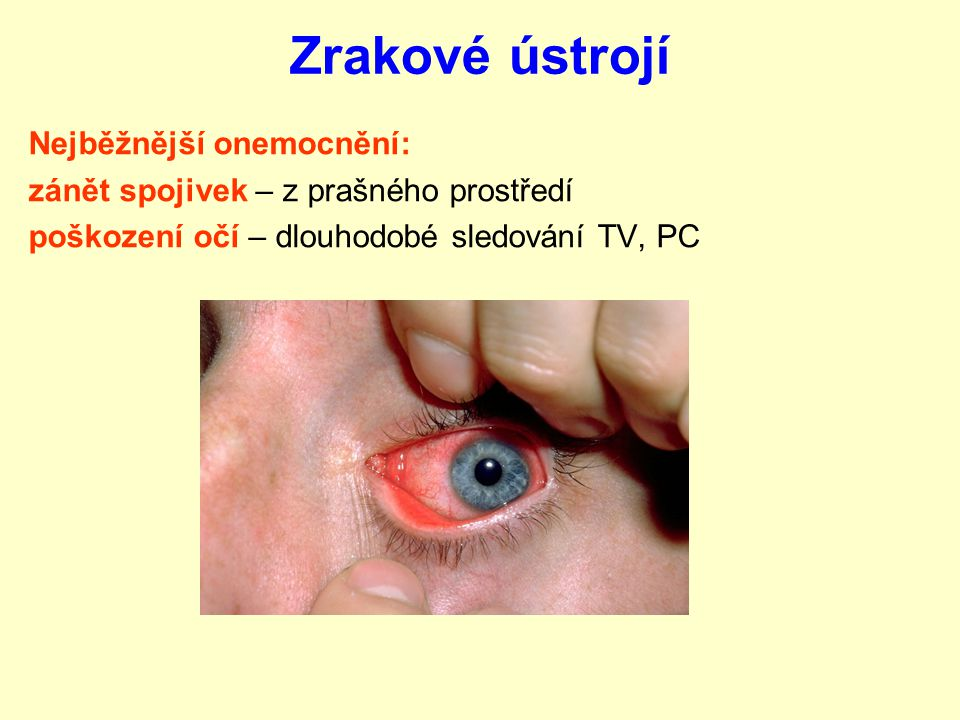 Zrakové ústrojí Nejběžnější onemocnění: