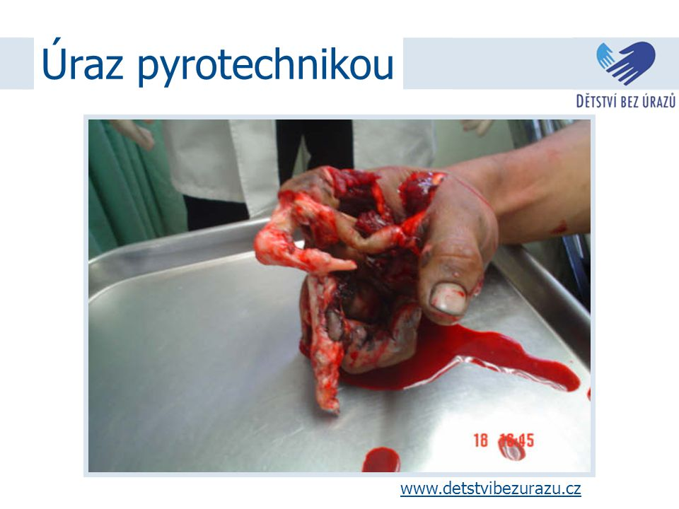 Úraz pyrotechnikou www.detstvibezurazu.cz