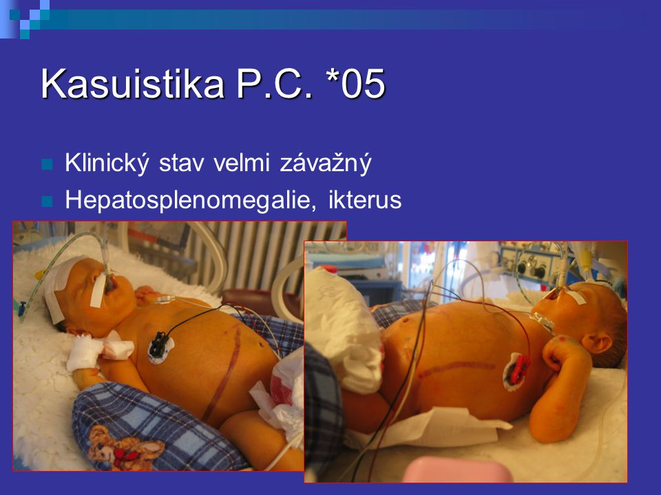 Kasuistika P.C. *05 Klinický stav velmi závažný