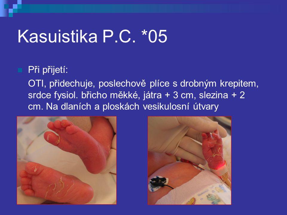 Kasuistika P.C. *05 Při přijetí: