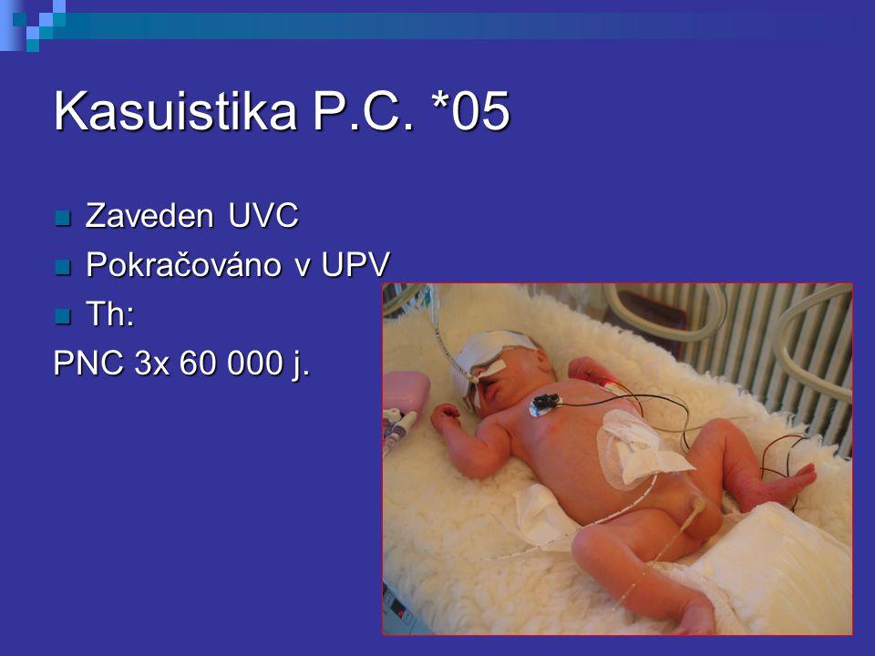 Kasuistika P.C. *05 Zaveden UVC Pokračováno v UPV Th: PNC 3x 60 000 j.
