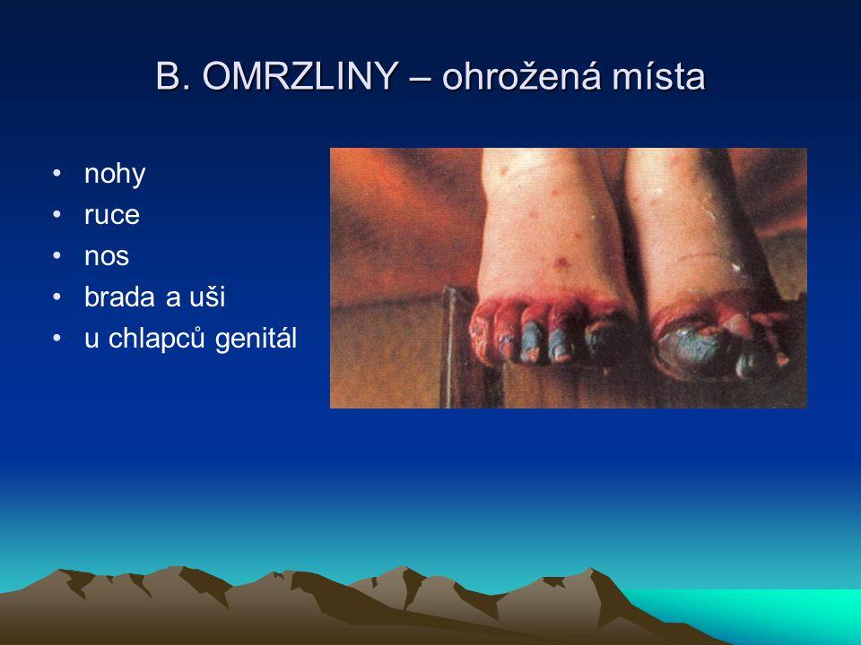 B. OMRZLINY – ohrožená místa
