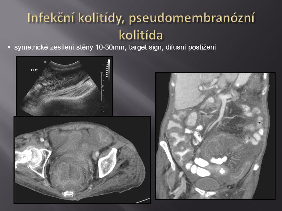 Infekční kolitídy, pseudomembranózní kolitída