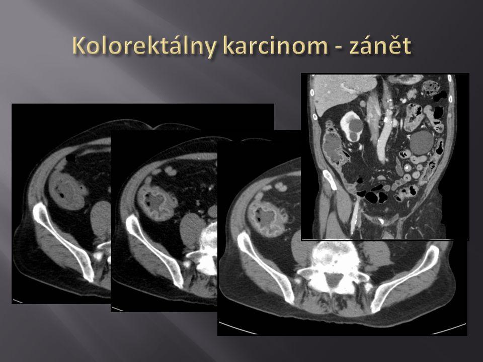 Kolorektálny karcinom - zánět