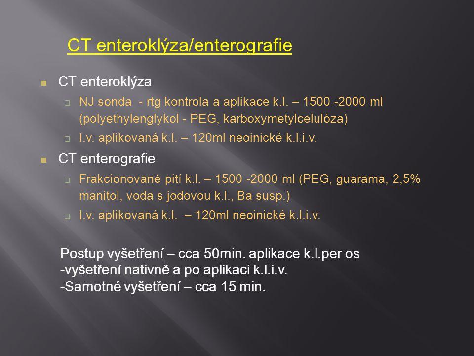 CT enteroklýza/enterografie