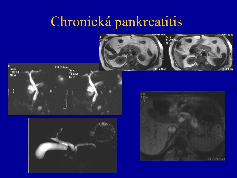 Chronická pankreatitis