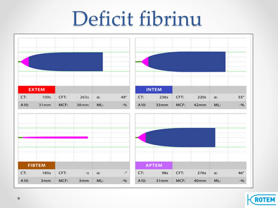 Deficit fibrinu