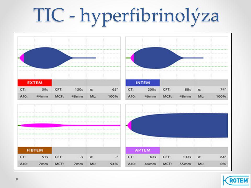 TIC - hyperfibrinolýza
