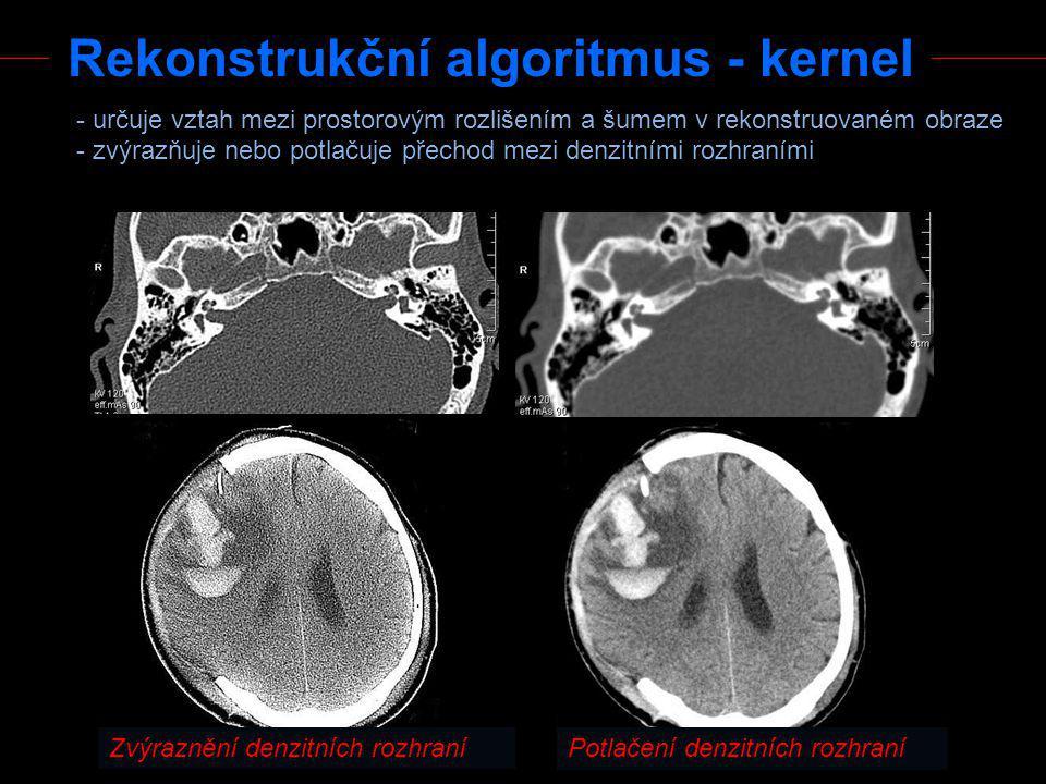 Rekonstrukční algoritmus - kernel
