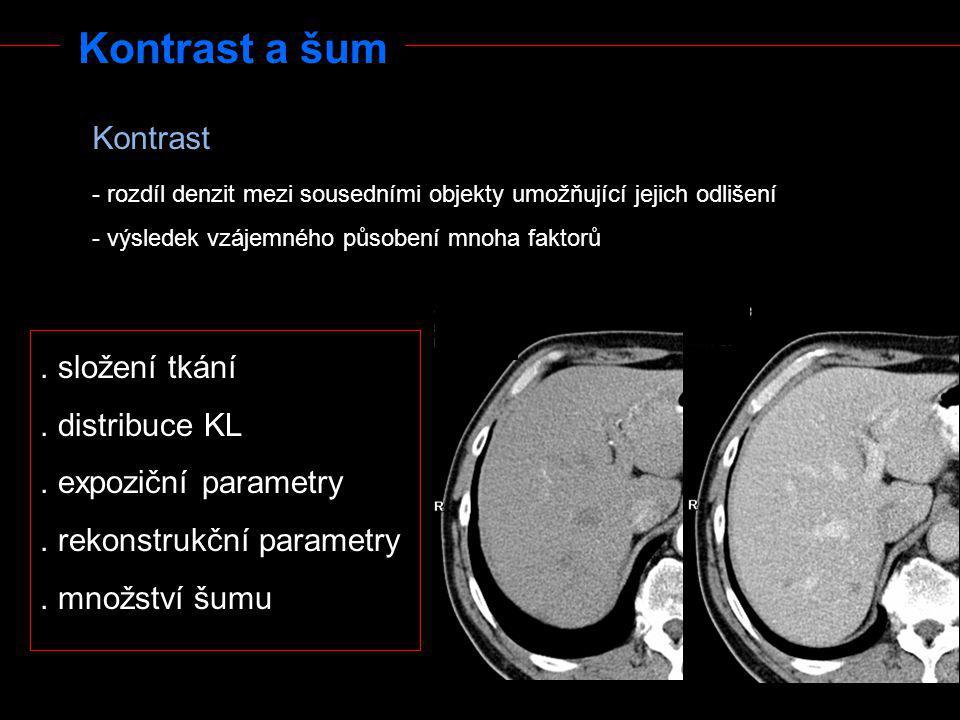 Kontrast a šum Kontrast . složení tkání . distribuce KL