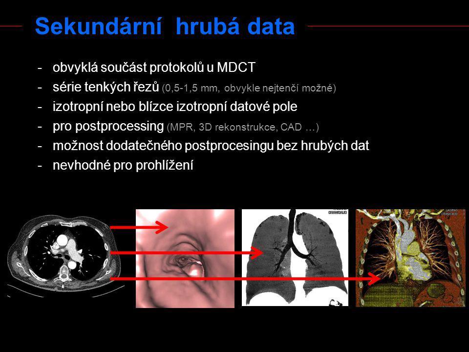 Sekundární hrubá data obvyklá součást protokolů u MDCT