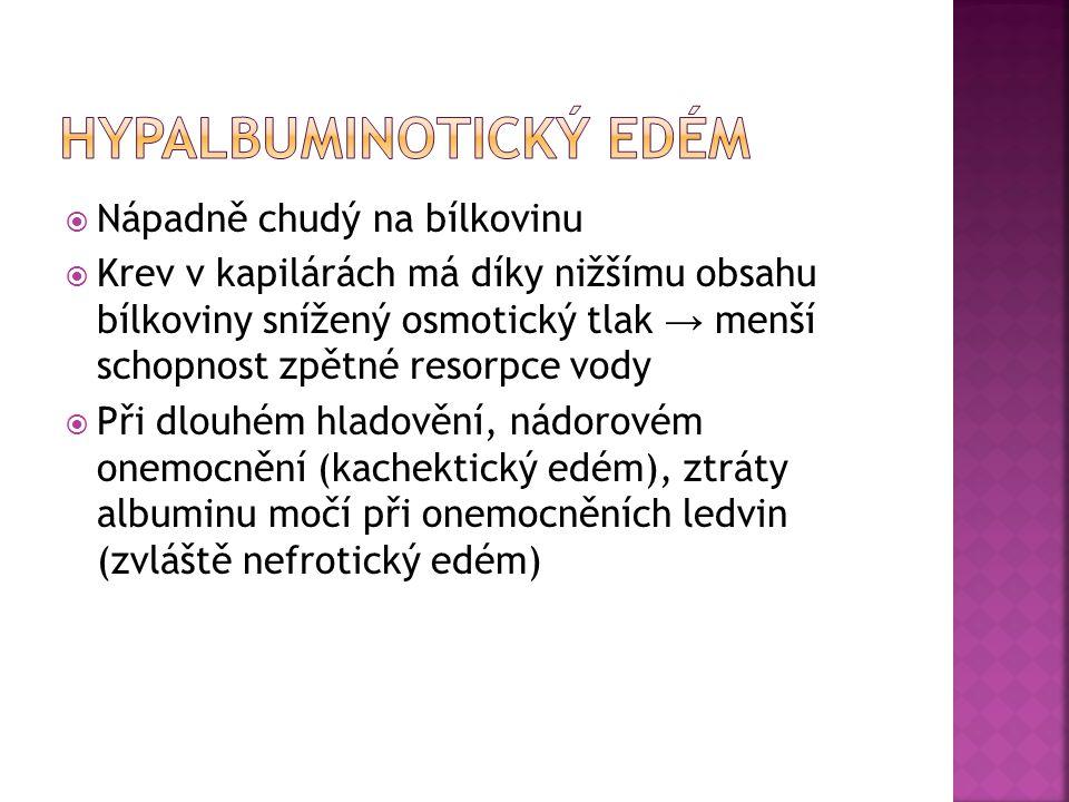 HYPALBUMINOTICKÝ EDÉM