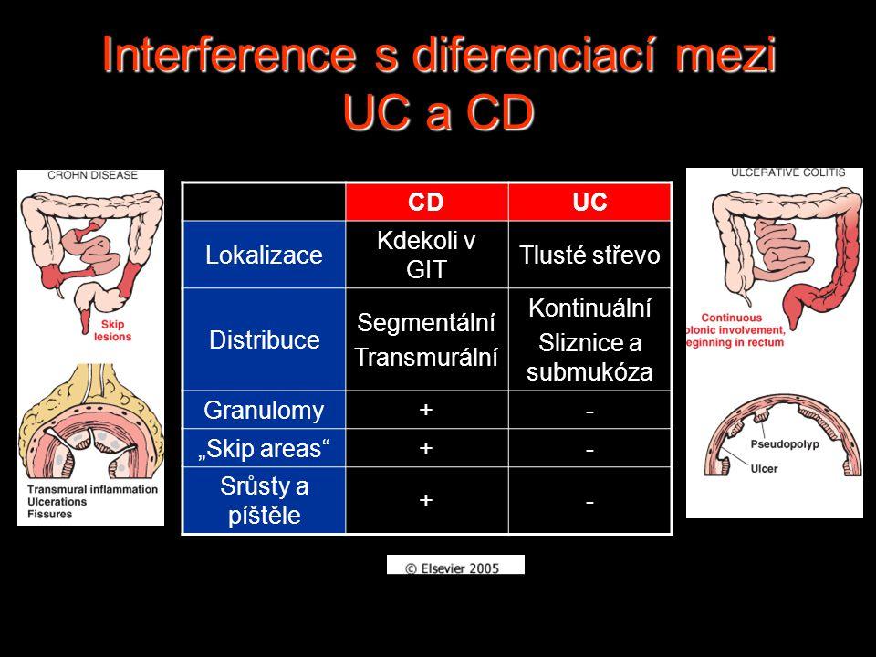Interference s diferenciací mezi UC a CD