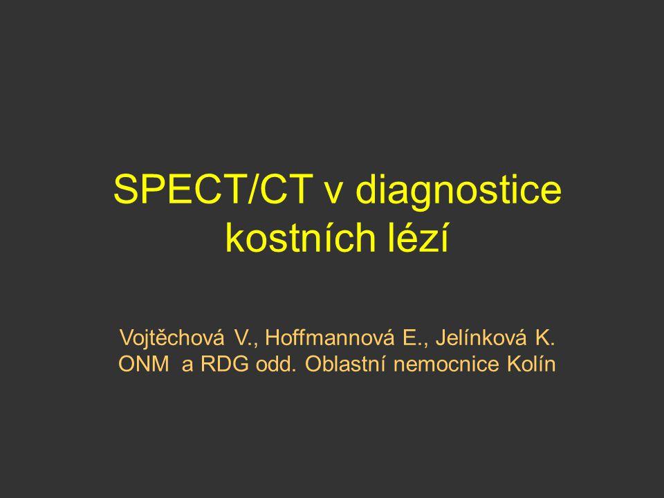 SPECT/CT v diagnostice kostních lézí
