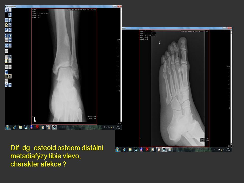 Dif. dg. osteoid osteom distální