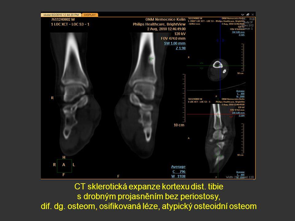 CT sklerotická expanze kortexu dist. tibie