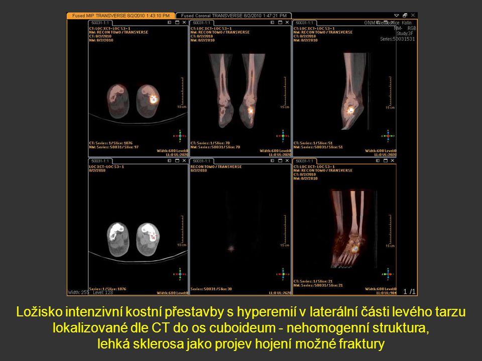 lokalizované dle CT do os cuboideum - nehomogenní struktura,