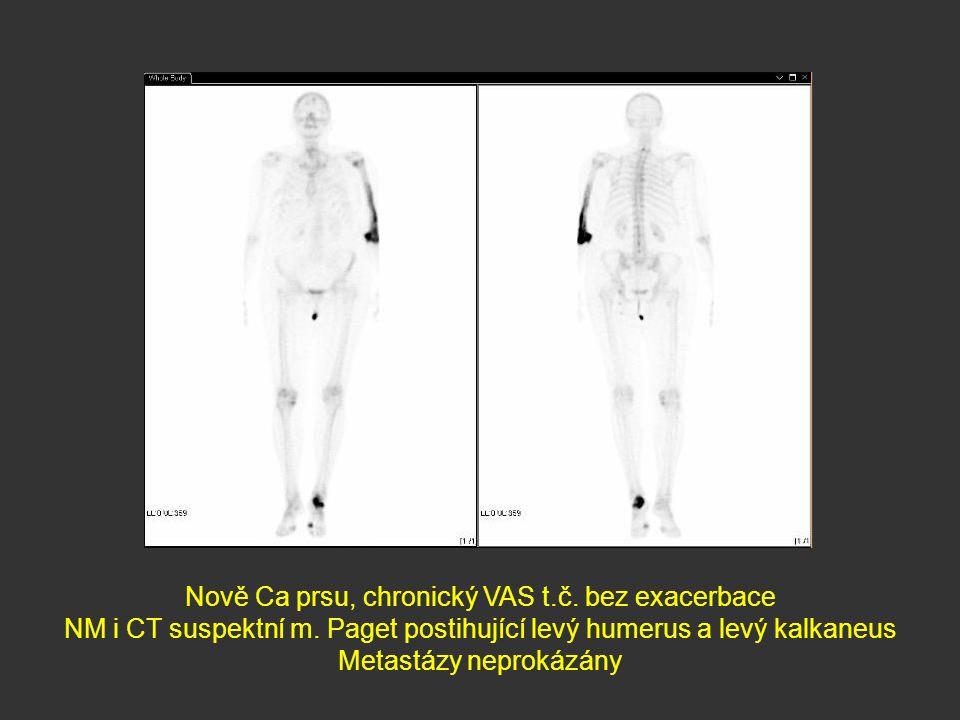 Nově Ca prsu, chronický VAS t.č. bez exacerbace