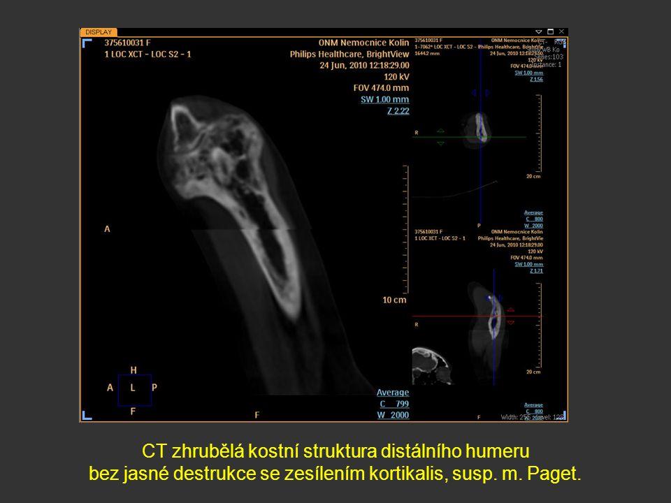 CT zhrubělá kostní struktura distálního humeru