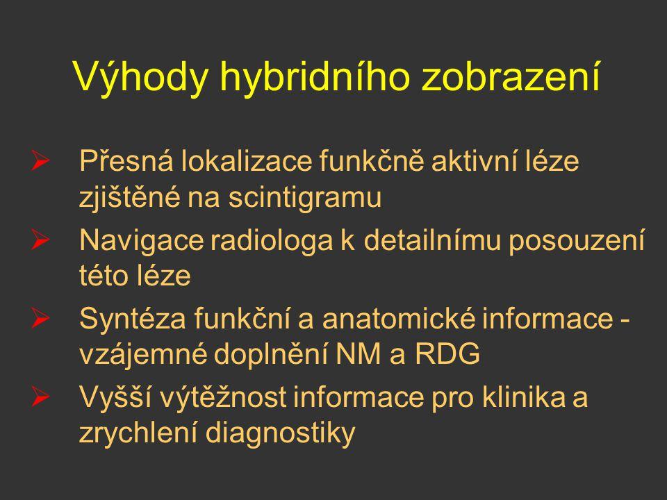 Výhody hybridního zobrazení