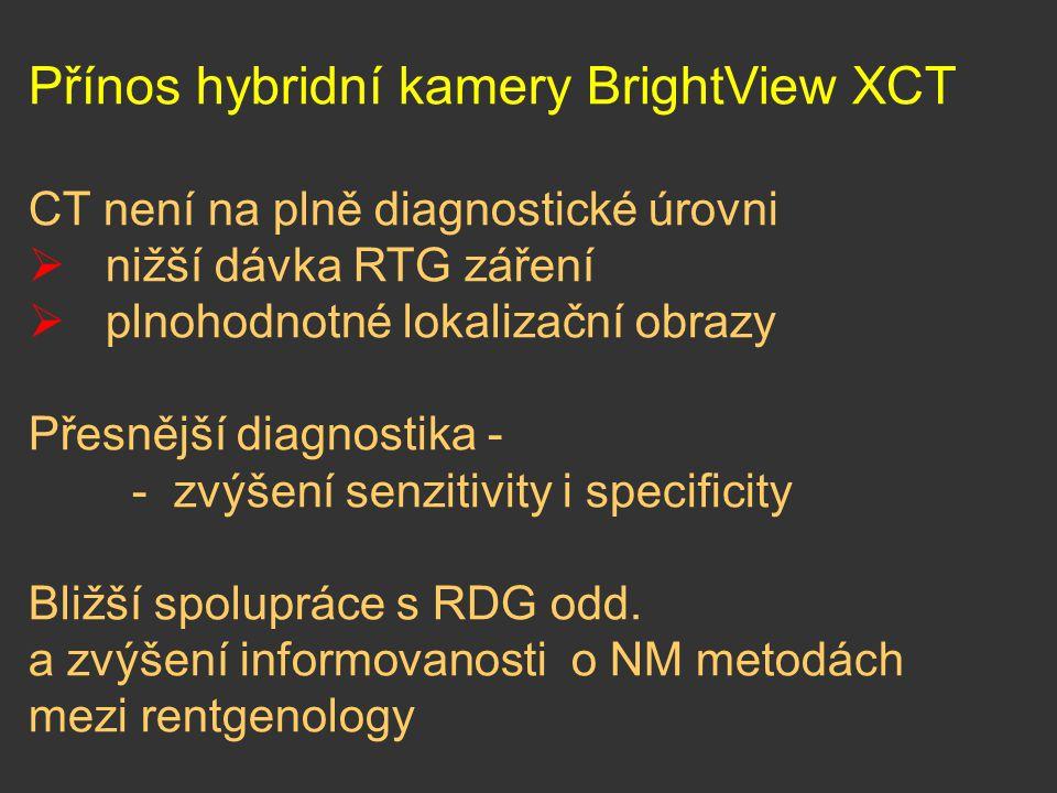 Přínos hybridní kamery BrightView XCT