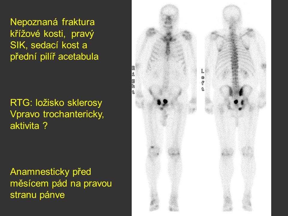 Nepoznaná fraktura křížové kosti, pravý SIK, sedací kost a přední pilíř acetabula