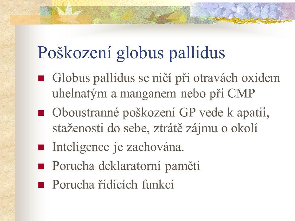 Poškození globus pallidus