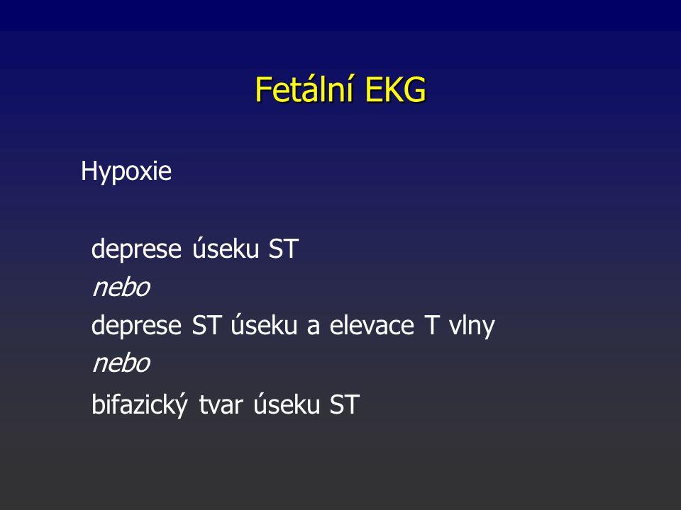 Fetální EKG Hypoxie deprese úseku ST nebo