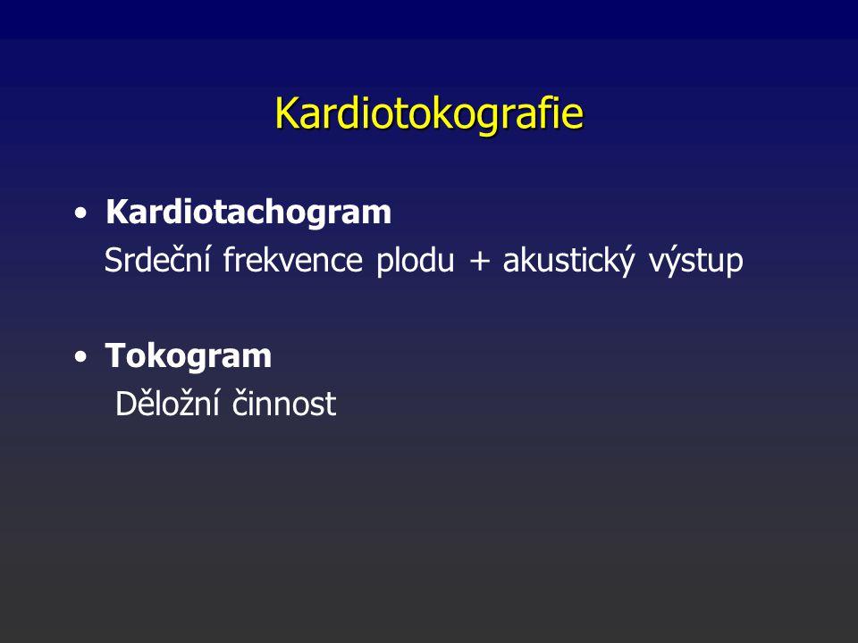 Kardiotokografie Kardiotachogram