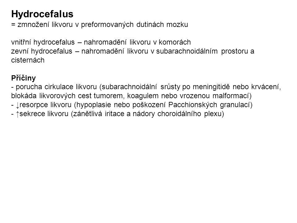 Hydrocefalus = zmnožení likvoru v preformovaných dutinách mozku