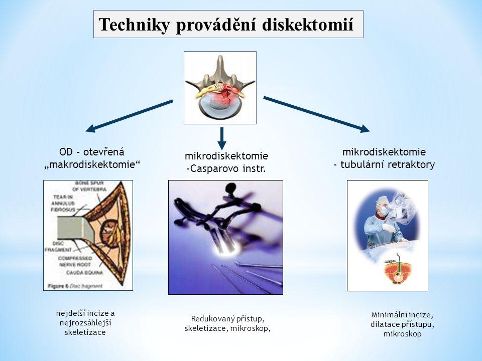 Techniky provádění diskektomií