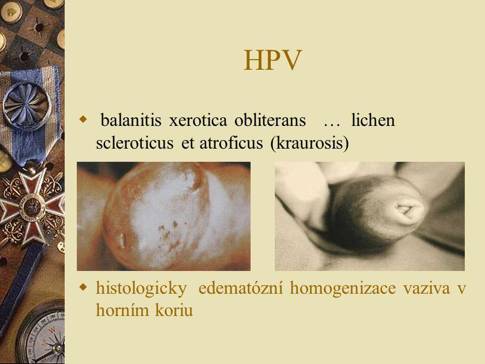 HPV balanitis xerotica obliterans … lichen scleroticus et atroficus (kraurosis) histologicky edematózní homogenizace vaziva v horním koriu.