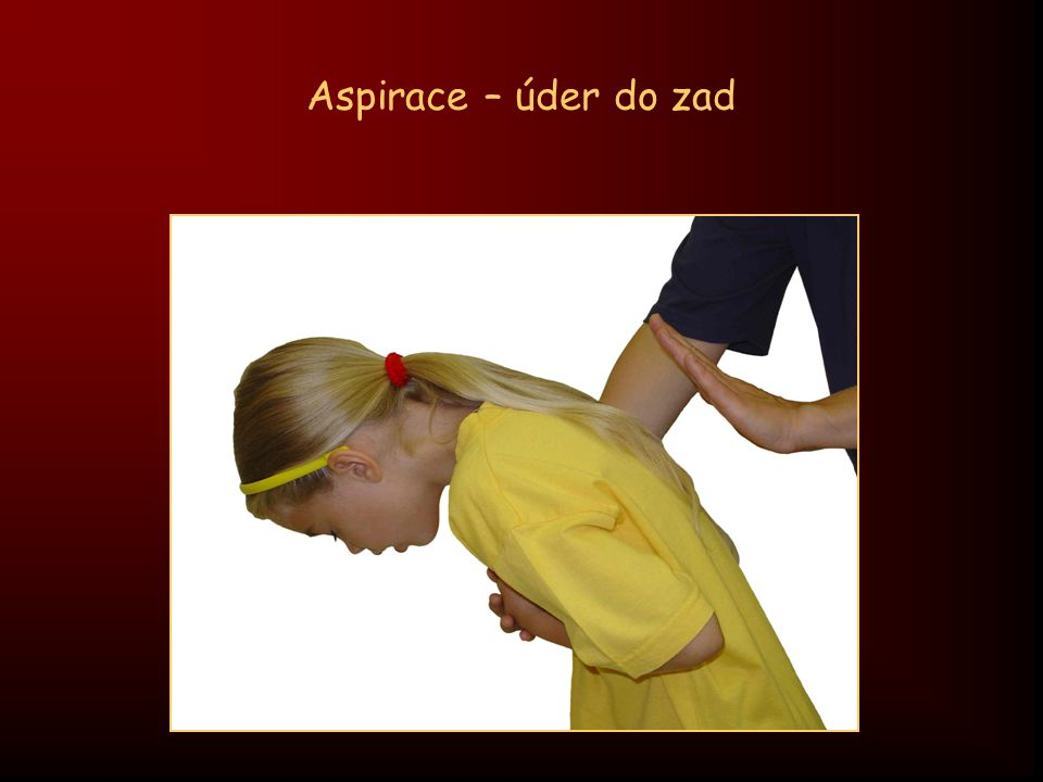 Aspirace – úder do zad