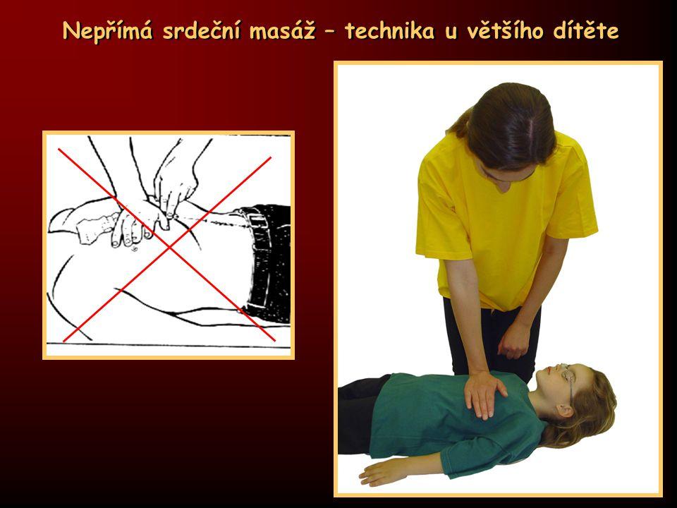 Nepřímá srdeční masáž – technika u většího dítěte