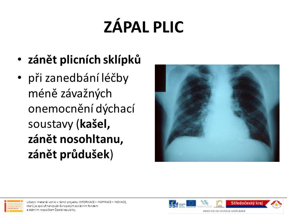 ZÁPAL PLIC zánět plicních sklípků